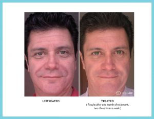 Galvanic-Spa-face-Hector
